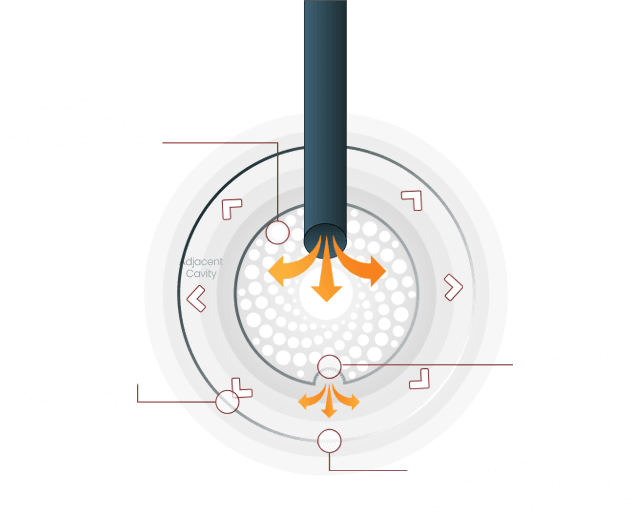 cavity-graphic-diagram